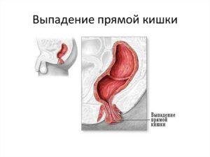 Геморрой или Выпадение толстой кишки