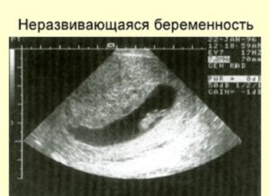 Неразвивающаяся беременность по узи