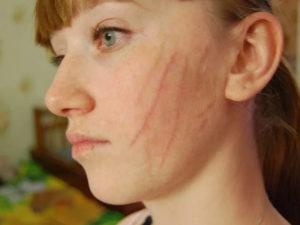 Недавно образовались шрамы на щеке
