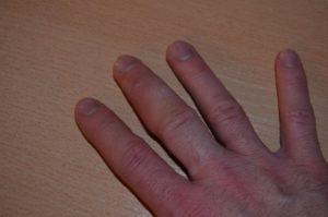 Опухли подушечки пальцев