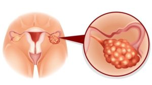 Гормоны при кисте яичника
