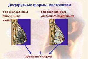 Нерезко выраженная фиброзно-кистозная мастопатия