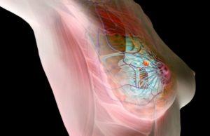 Новообразование в груди / мастопатия