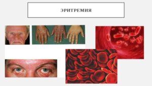 Хроническая эритремия