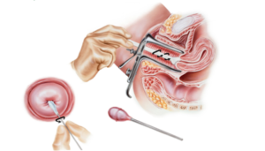 Онкоцитология шейки матки