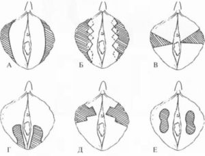 Необычная форма малых половых губ