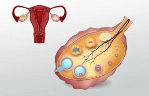 Нет месячных после родов 3 месяца(грудью не кормлю)