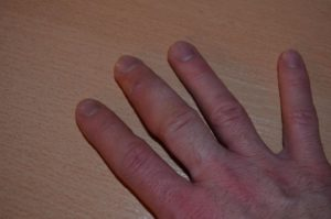 Опухают кончики пальцев на руках