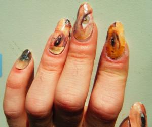 Неприятные ощущения очень страшные ногти