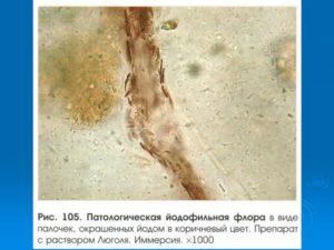 Обнаружили бактерии в кале
