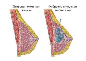 Фиброзно-кистозная мастопатия и прием Визанны