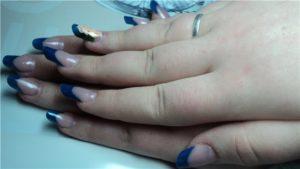 Горбинка на ногте