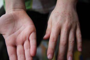 Опасен ли контакт беременной с сыном с диагнозом вирусная пузырчатка?