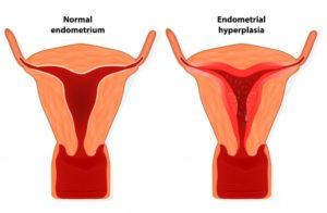 Гиперплазия эндометрия и эндометриоз