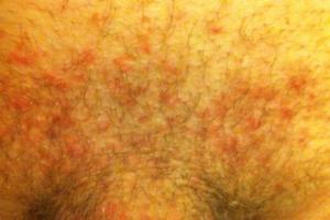 Непонятные высыпания на теле и ногах после незащищенного орального секса