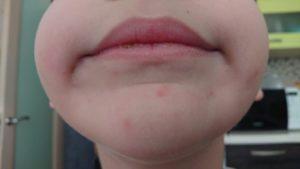 Небольшая сыпь на подбородке и у носа у ребенка 7 лет