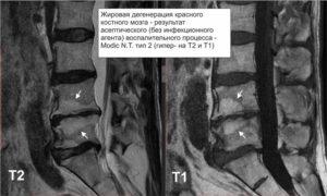 Опасен ли реактивный псевдовоспалительный отек костного мозга позвоночника