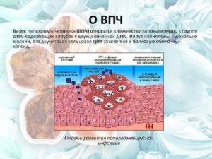 Папиломавирус ВПЧ 58