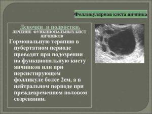 Фолликулярная киста и лечение