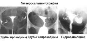 Гидросальпинкс на ГСГ