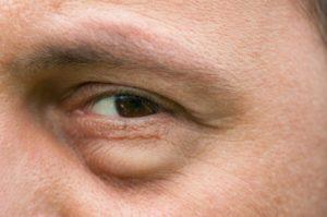 Опухоль под левым глазом