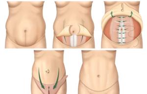 Операция на живот, через сколько дней можно заниматься сексом?