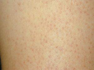 Гусиная кожа на ногах ребенка