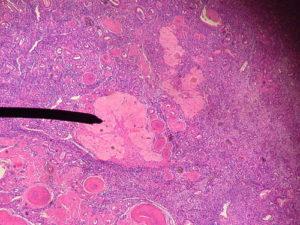 Гистология кисты яичника