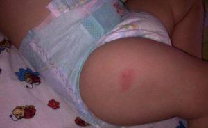 Гнойничок после прививки АКДС