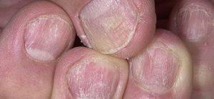 Грибковое поражение ногтевых пластин, кожи, себорея, псориаз