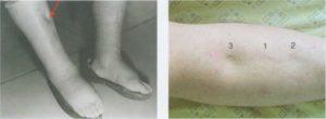 Образовалась вмятина на ноге ниже колена но выше ступни