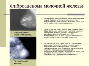 Фиброаденома с малигнизацией