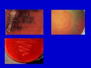 Neisseria sicca 10в6, streptococcus viridans group 10в6. haemophilus paranfluenzae 10в6