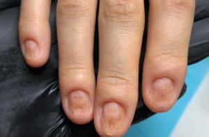 Отмирает кожа на пальце ноги