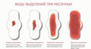 Обильные выделения при месячных