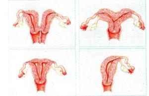 Гипоплазия вульвы