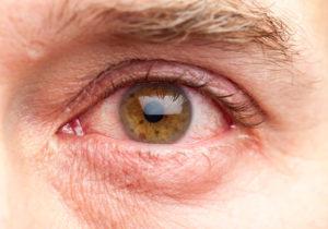 Недолеченный коньюктивит или сухость глаз?