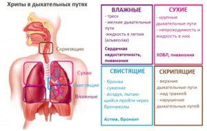 Хронический бронхит без температуры, кашля, насморка: жесткое дыхание плюс флюорография,