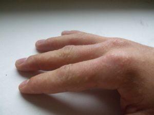 Пальцы чешутся