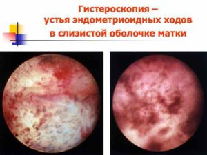 Гистероскопия, эндометриоз