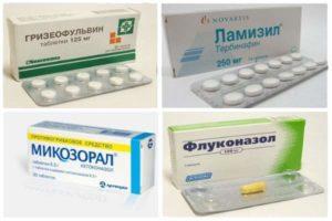 Флуконазол табл при себореном дерматите