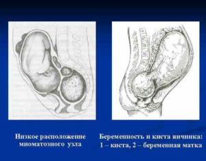 Низкое расположение матки при беременности