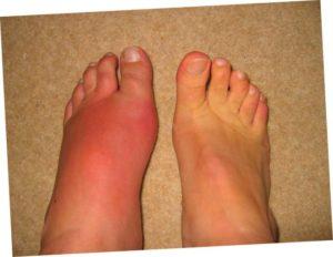 Опухла нога с температурой