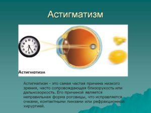 Гиперметропический астигматизм у ребенка