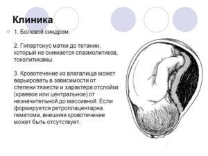 Гематома при беременности с обильными выделениями