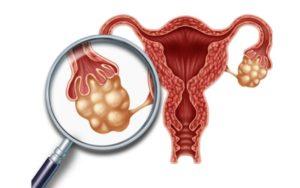 Гормоны. Поликистоз яичников. Эндометриоз