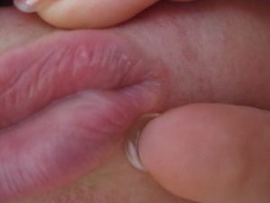Головка пениса синяя