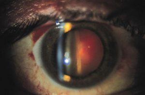 ГРУБАЯ деструкция стекловидного тела или кровоизлияние