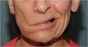 Онемение части лица