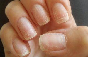 Ногти после шеллака испортились